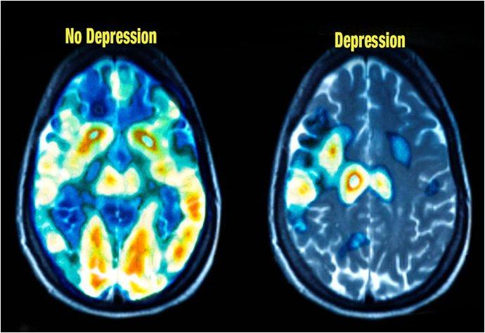 The Depressed Brain Vs Normal Brain